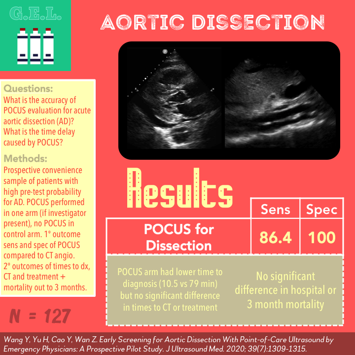 Aortic dissection graphic